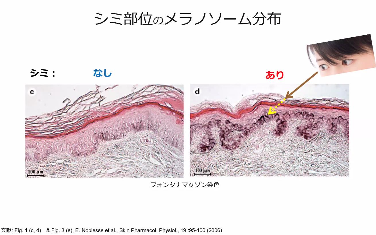 シミ部位のメラノソーム分布